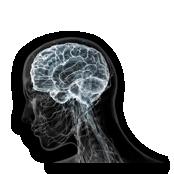 мрт в неврологии